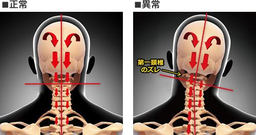 正常な頚椎の骨格画像と、ズレてしまった頚椎を比較したイラスト画像