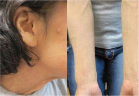 3回の治療をして、3週間後に来院した時の首、前腕のアトピーの状態