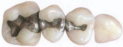 Amalgam-Sanierung bei Zahnarzt Dr. Thobaben in Hamburg-Harburg