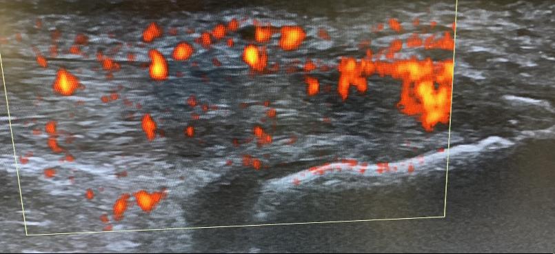 Achillessehne mit Gefässneubildungen (rot) als Zeichen der chronisch fortgeschrittenen Entzündung
