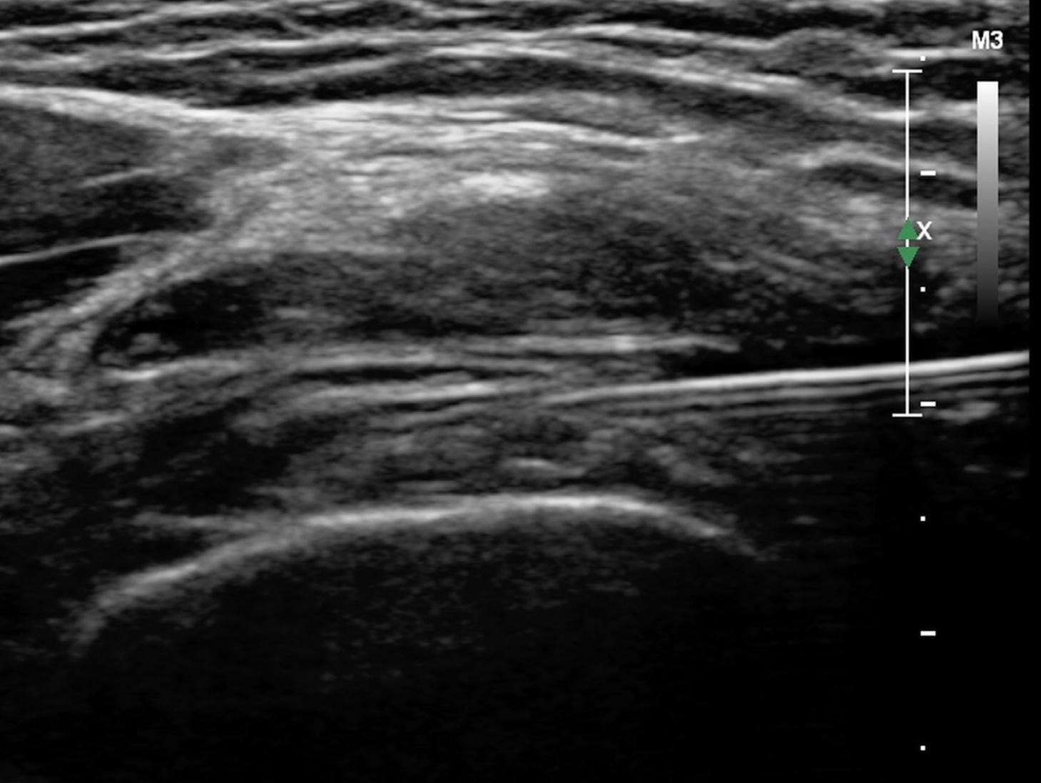 Knie-Gelenks-Infiltration über den Recessus suprapatellaris