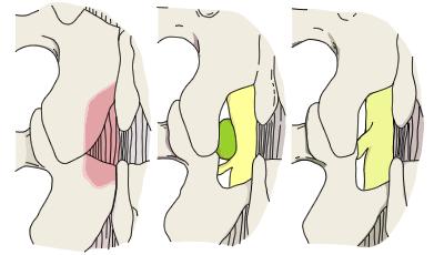 図3-2 椎間板ヘルニアの摘出術