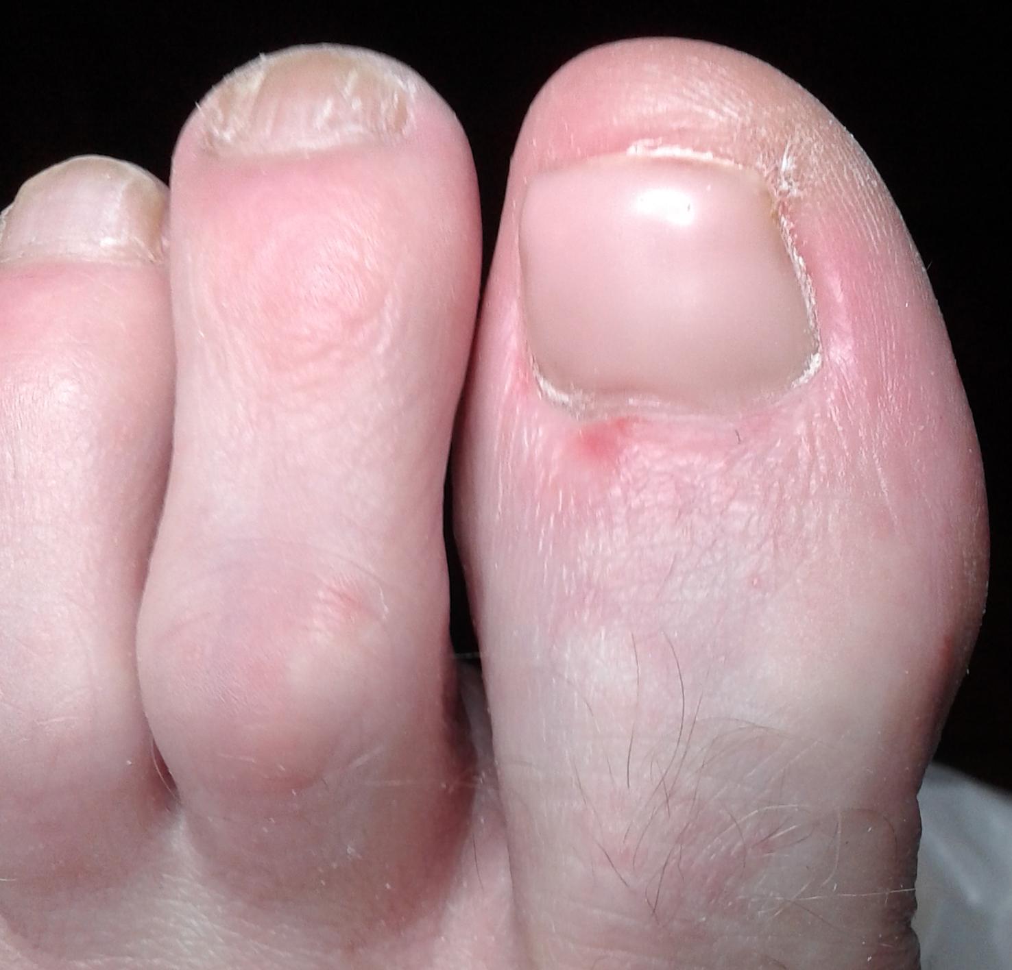 Kunnen we, als de behandeling aanslaat, er een mooie nagelprothese overheen plaatsen.