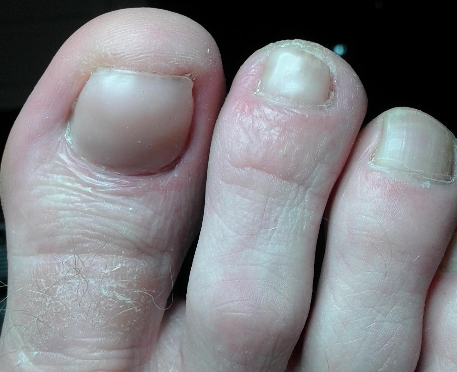 """op deze manier heeft u cosmetisch gezien alweer mooie nagels, dit terwijl het anti mycose traject gewoon doorgaat. zo maken we """"samen"""" de nagel weer gezond en kunt u er weer alles mee gaan ondernemen.  Denk aan zwemmen met de (klein) kinderen."""