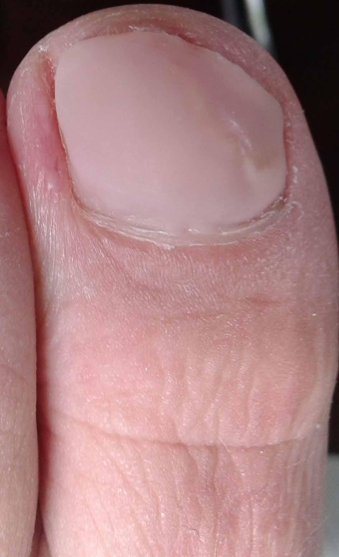 Met een nagelprothese hoeft u zich hier niet meer voor te generen en kunt u gewoon weer lekker in sandalen of open schoenen lopen!