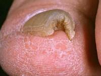 Ondervindt u hinder van een verdikte nagel?