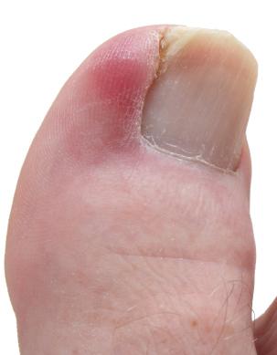 ingroeiende nagel?