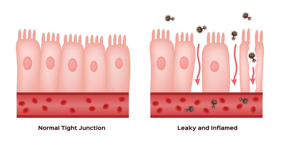 Leaky Gut & Hormonelles Ungleichgewicht