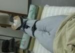 松崎カイロプラクティックO脚矯正画像#3