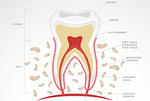 endodoncia-dentista santander-clinica dental santander