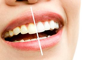 blanqueamiento dental en santnader-clinica dental santander-dentista santander