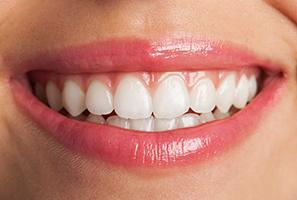 estética dental santander-dentista
