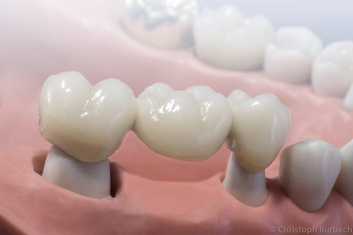 """das Werkstück """"überbrückt"""" die Zahnlücke"""