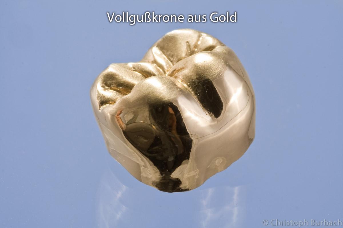Vollgusskrone aus einer Goldlegierung