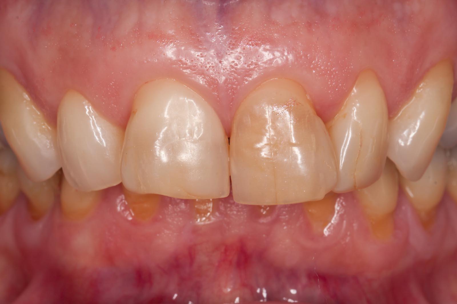 verfärbte, unregelmäßig und lückig stehende Zähne mit verfärbten Kompositaufbauten