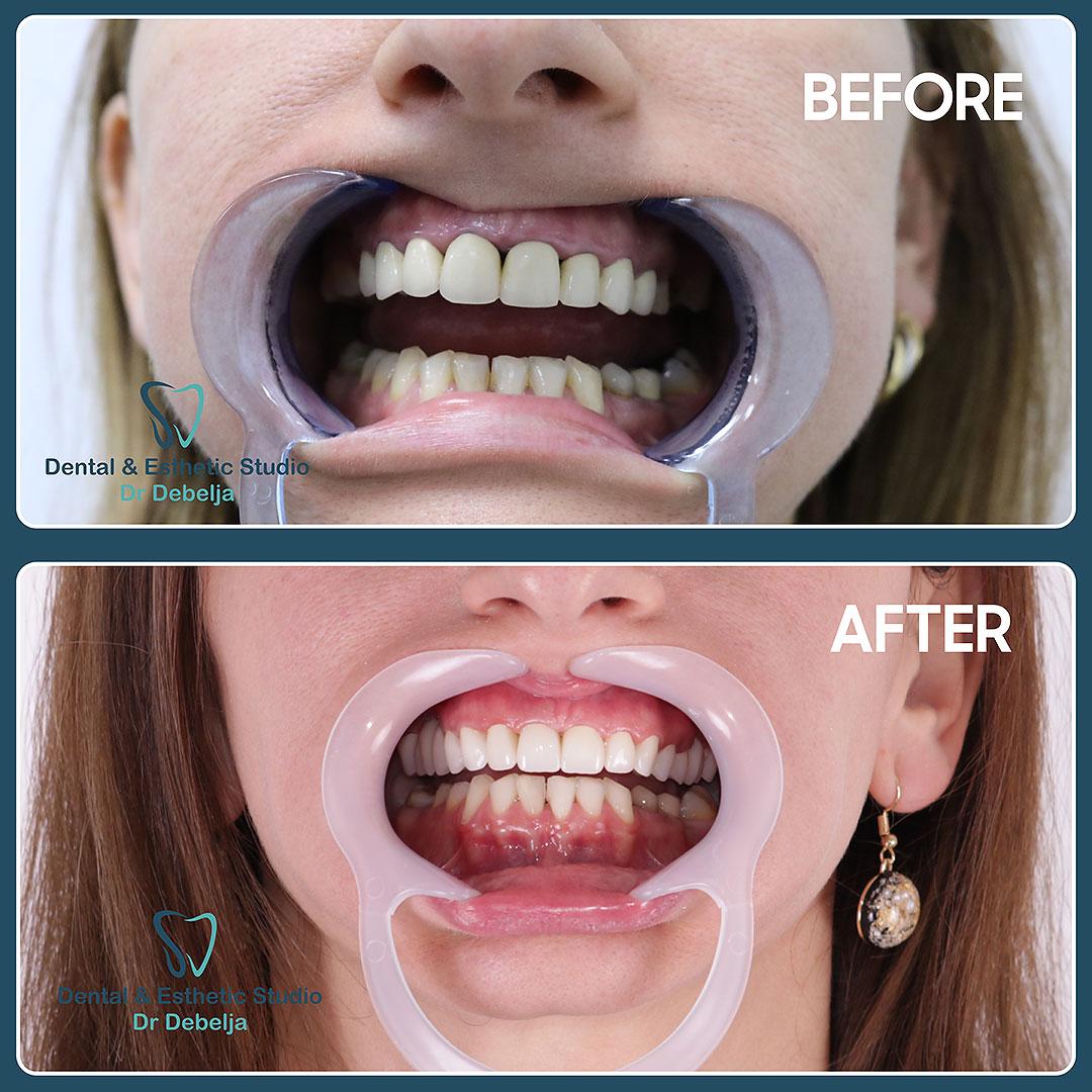 Before  & After Woman I | Dental Esthetic Studio Dr Debelja Bar Tivari Montenegro