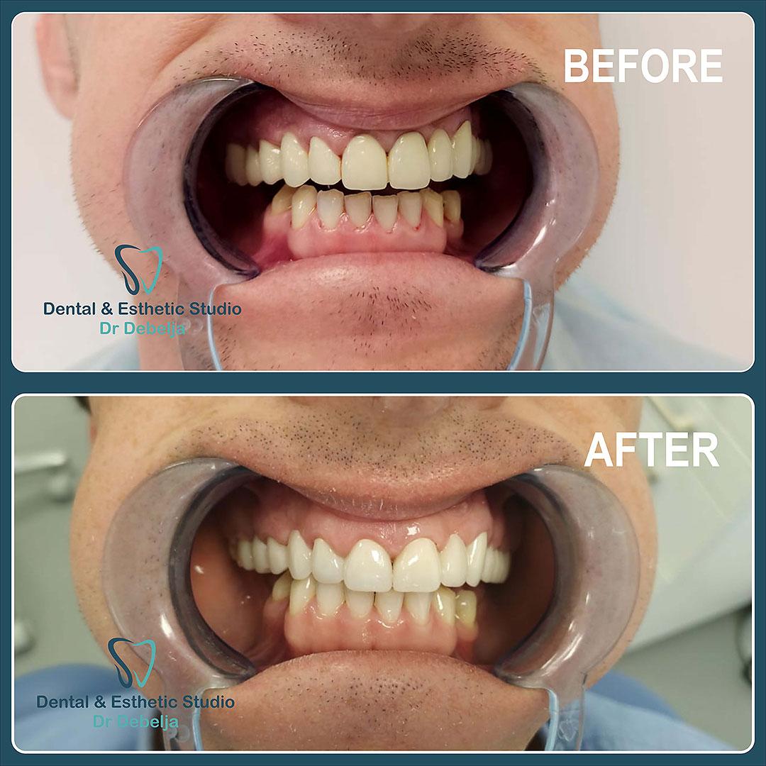 Before  & After Man I | Dental Esthetic Studio Dr Debelja Bar Tivari Montenegro