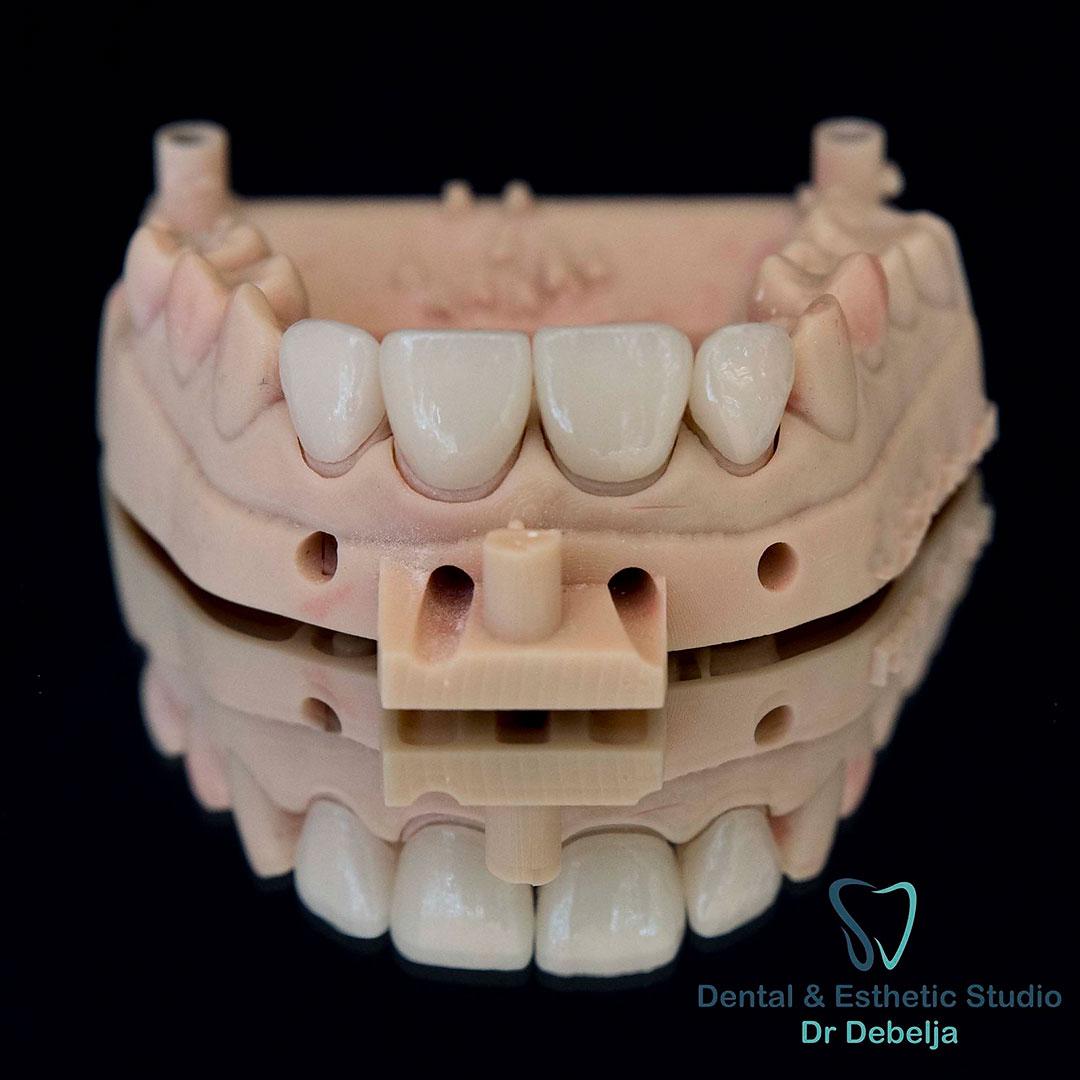 Veneers IV | Dental Esthetic Studio Dr Debelja Bar Tivari Montenegro