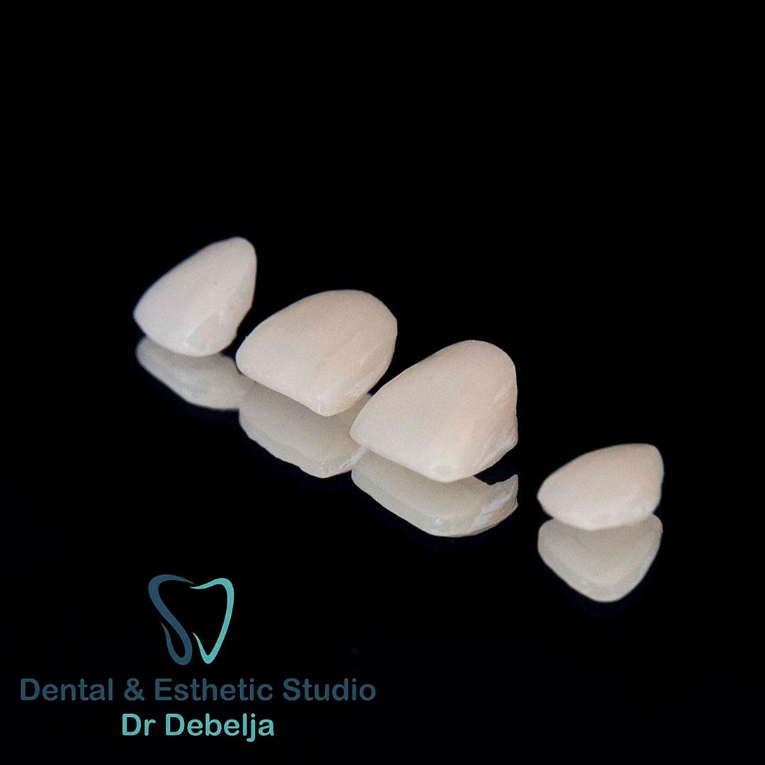 Veneers I | Dental Esthetic Studio Dr Debelja Bar Tivari Montenegro