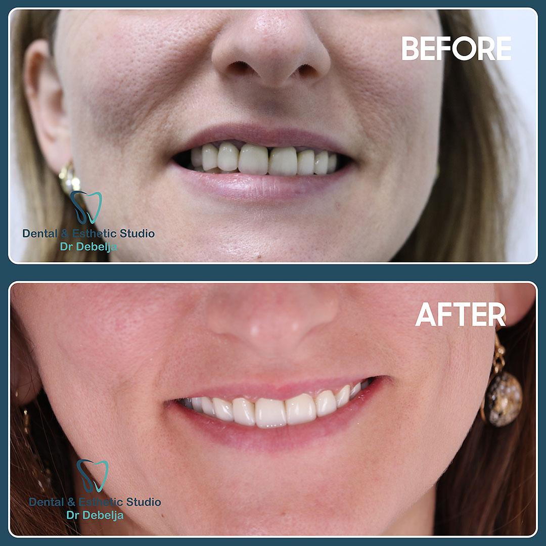 Before  & After Woman II | Dental Esthetic Studio Dr Debelja Bar Tivari Montenegro