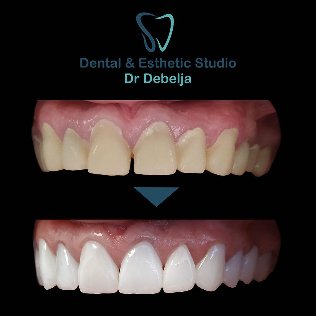 Before  & After Woamn II | Dental Esthetic Studio Dr Debelja Bar Tivari Montenegro