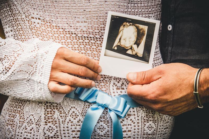 Maternity Photoshoot Aviano