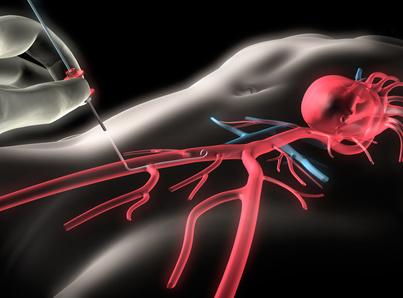 Leistenarterie | Arteria femoralis