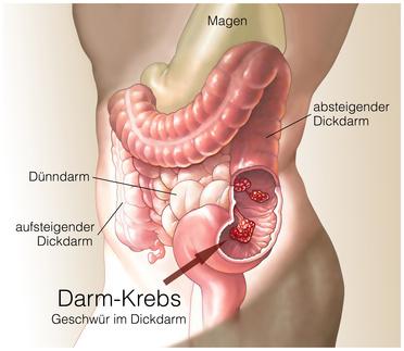 Die Hämorrhoide und die Wassergeschwulst nach der Operation die Abtragung der Hämorrhoide