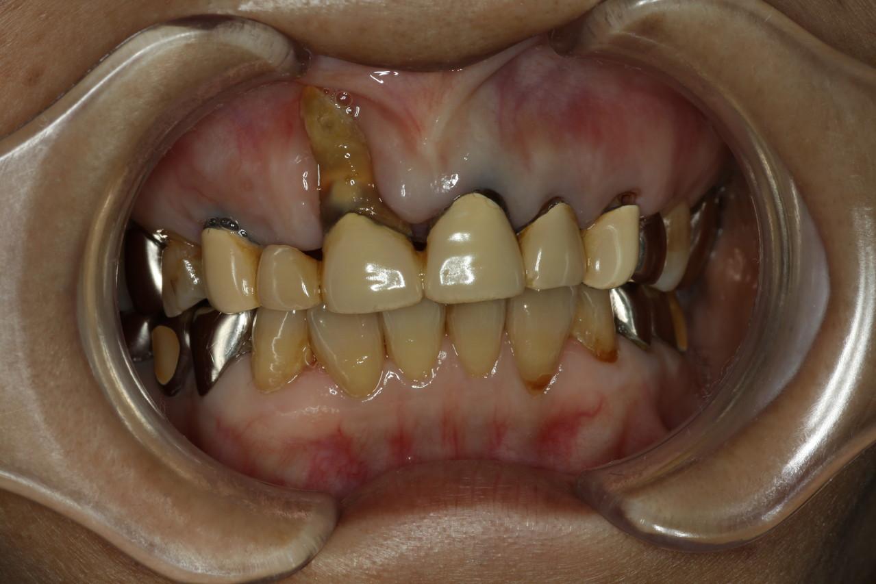 の 腫れる 奥 歯茎 が