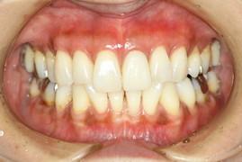 歯茎を再生した状態