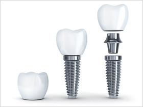 Implantate Aufbau
