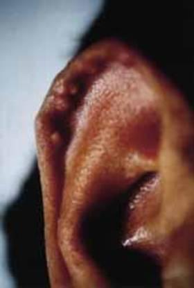 Gichtknoten am Ohr