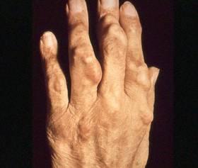 Mehrere Gichtknoten an einer Hand