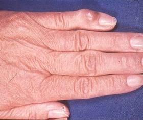 Gichtknoten am kleinen Finger