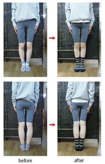O脚矯正でO脚が改善したケース。白山市のO脚矯正もおまかせください。