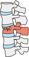 圧迫骨折後から腰痛になる