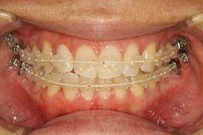 歯列矯正モニター装置 審美装置