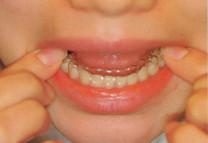 歯並びをマウスピースで治療