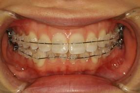 歯列矯正モニター装置 スタンダード