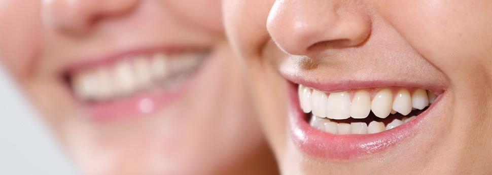 Ästhetische Zahnheilkunde - Dr. Rathgeber Aalen