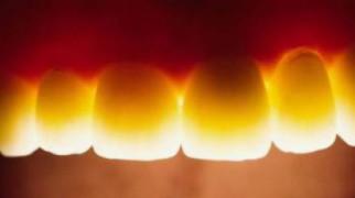 Transluzenz - ganz natürlich schimmert das Licht durch den Zahnkürper wie bei eigenen Zähnen © Fa. Sirona