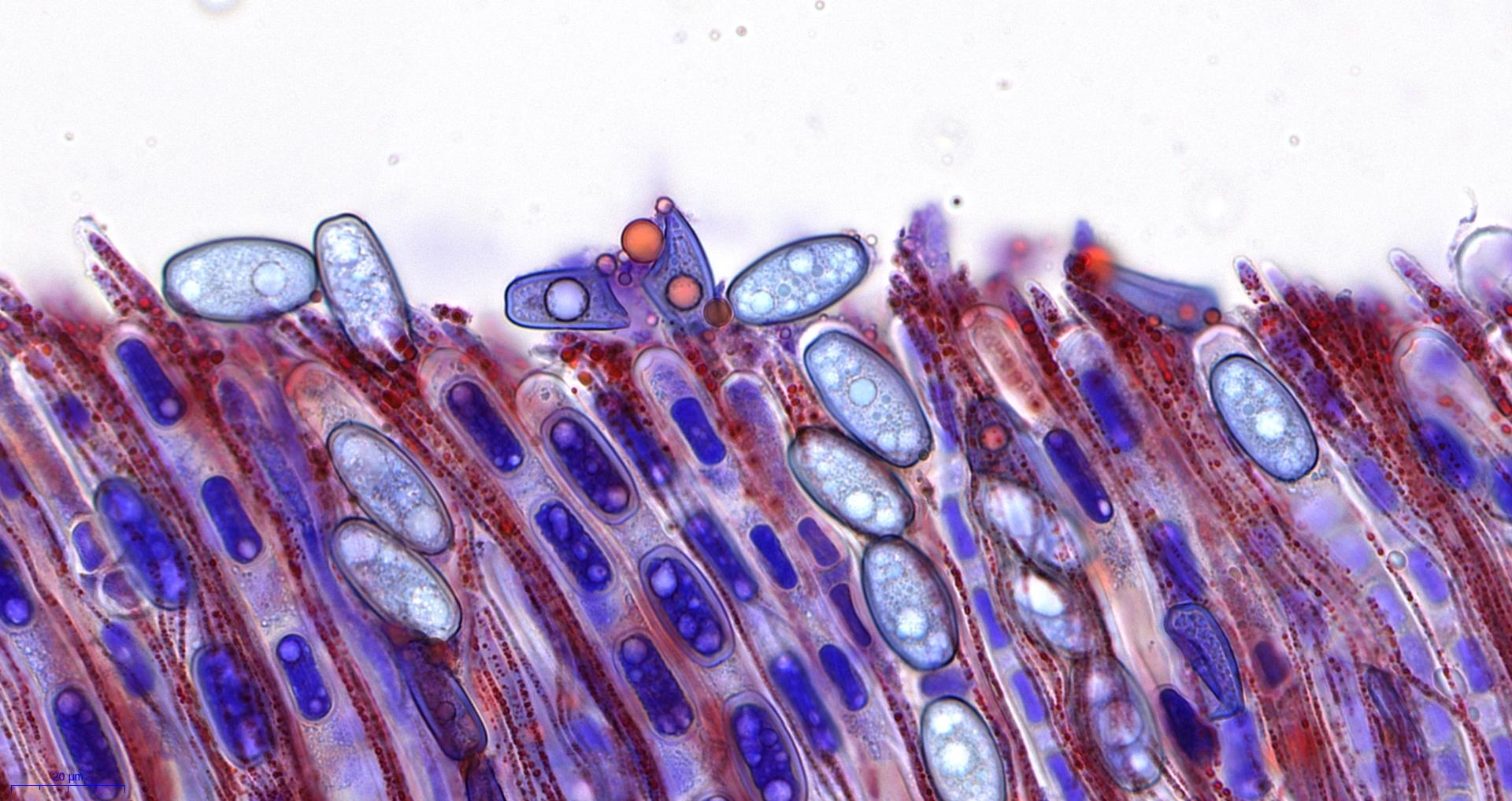 Mikrobild Sarcoscypha austriaca
