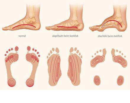 Faszien Fußsohle