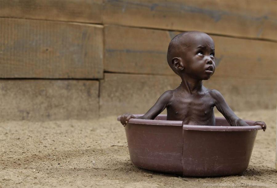 Голод поражает Восточную Африку