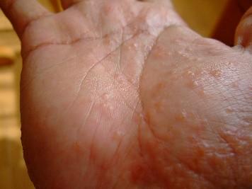 「汗疱状湿疹」の画像検索結果