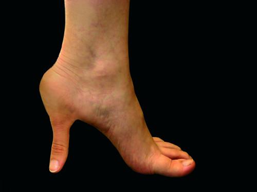 Anatomía del calzado. 2009