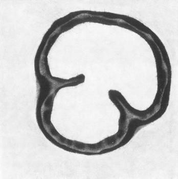 Eliana Bürgin-Lavagetti | Schnittstellen 2001/2002, Mezzotinto, Kupferplattenformat 12,5 x 12,5 cm, Blattgrösse 20 x 20 cm, Zerkall Bütten 300 g/m2.