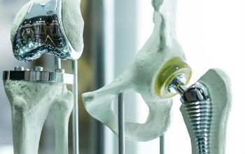 Prothèse totale de genou et de hanche