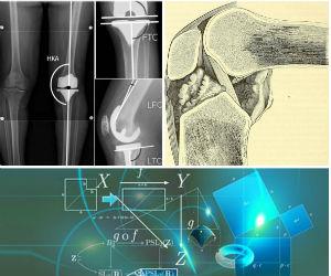 Radio de genou, ligament croisé antérieur
