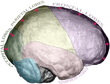 "Schematic representation in the right lateral view of the variations in endocranial anatomy between a fossil (external outline corresponding to Cro-Magnon 1) and a ""mean"" extant anatomically modern human (internal outline)"